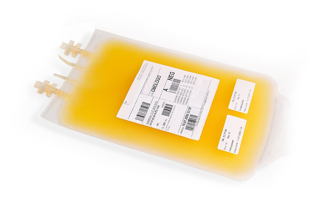 Blutplasmareiningung als therapeutische INUSpherese in der Alpstein Clinic in Gais!